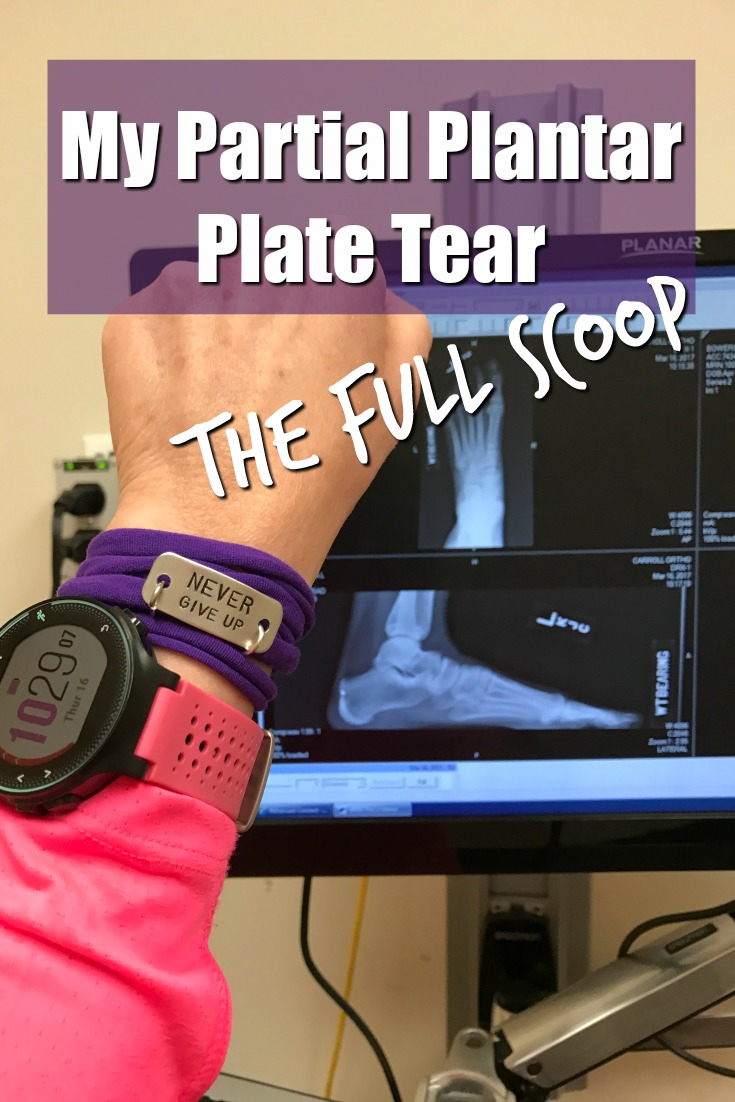 My Partial Plantar Plate Tear: The Full Scoop