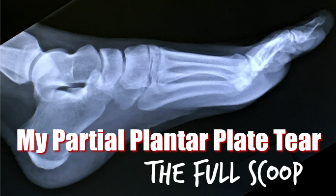 My Partial Plantar Plate Tear Injury: The Full Scoop