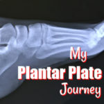 My Partial Plantar Plate Tear Journey